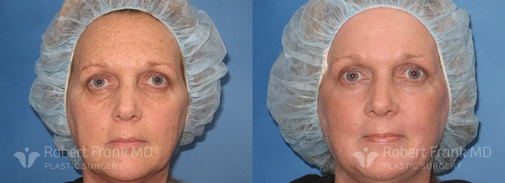 Patient A Laser Resurfacing Before and After