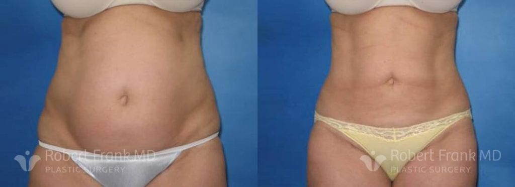 Liposuction Before and After Patient