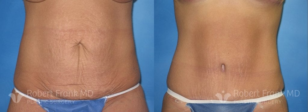 Tummy Tuck Before After Photos Dr Robert Frank