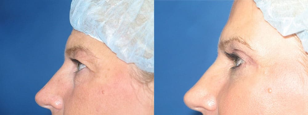 Patient A Blepharoplasty Before and After