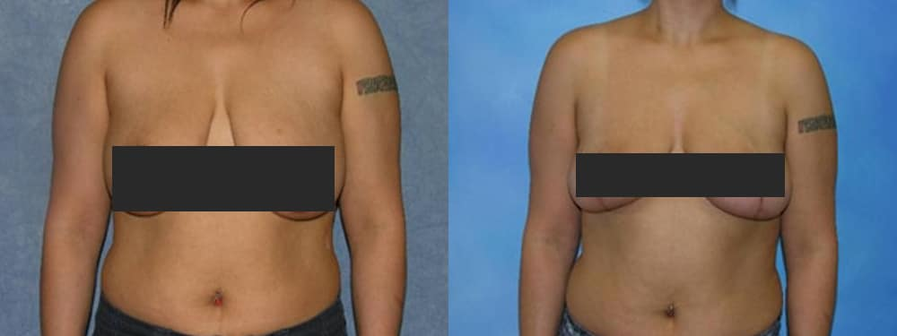 Breast Lift Before and After Comparison