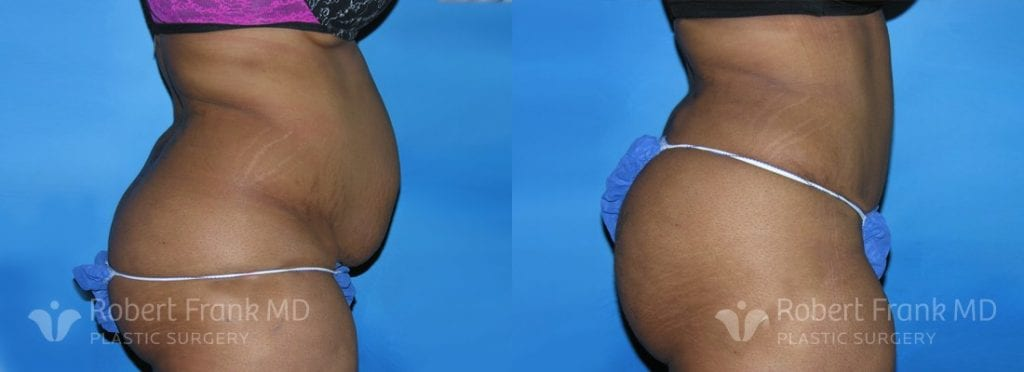 Patient 1a Brazilian Butt Lift Before and After