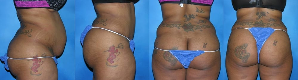 Patient A Brazilian Butt Lift Before and After