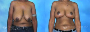 robert-frank-munster-hobart-breast-reduction-patient-2-1